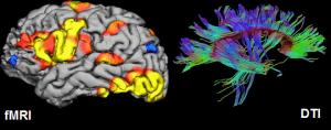 fMRI1-300x118