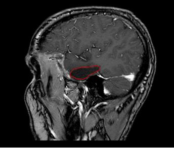Dit is een afbeelding van een hersenscan na een tumorverwijdering. De rode omlijning geeft aan waar de tumor vroeger zat.
