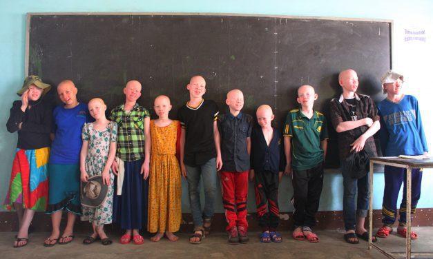 Albinisme: de mythe doorprikt