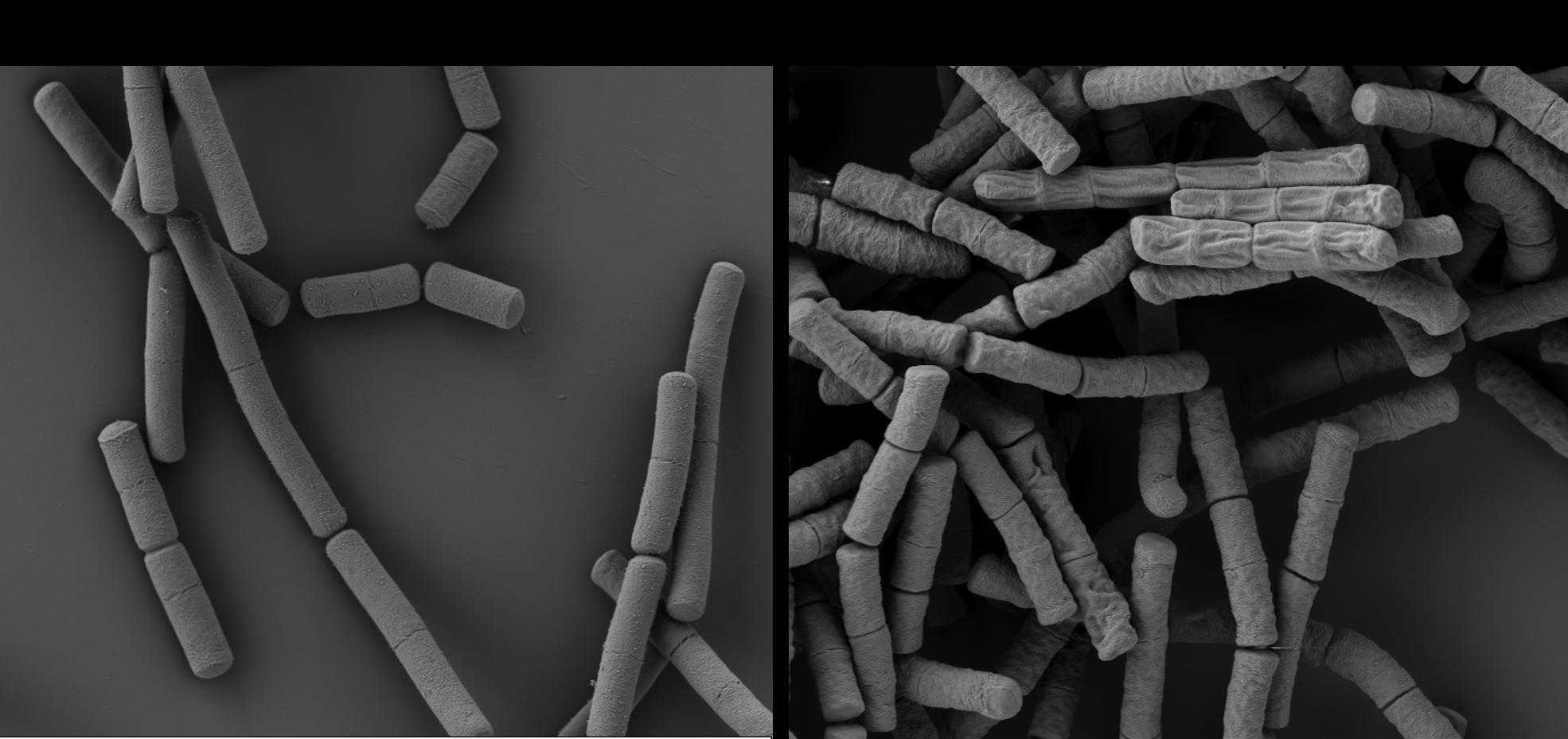 Nbs effect on S-layer (Fioravanti et al. 2019; Nature Microbiology)